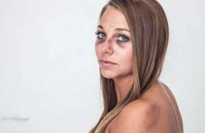 Ragazza picchiata dal fidanzato mostra lividi: foto è virale