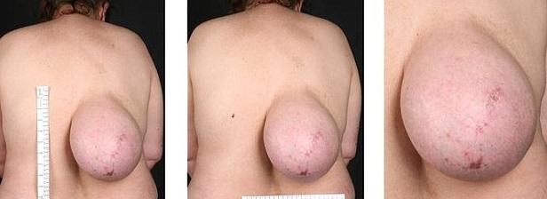 La donna con il seno... sulla schiena