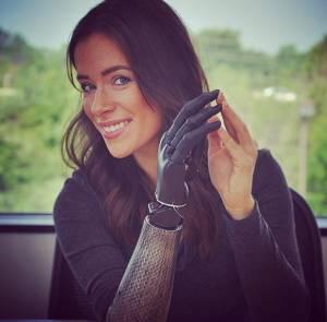 Rebekah Marine, modella con braccio bionico FOTO