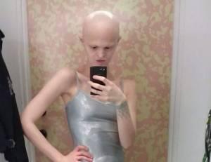 Melanie Gaydos: modella calva, senza denti e quasi cieca FOTO