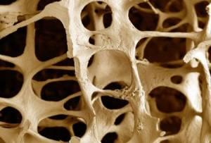 Osteoporosi, uomini over 50 sempre più a rischio fratture