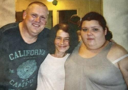 L'obesità ti uccide: pesava 254 chili, morta a 20 anni