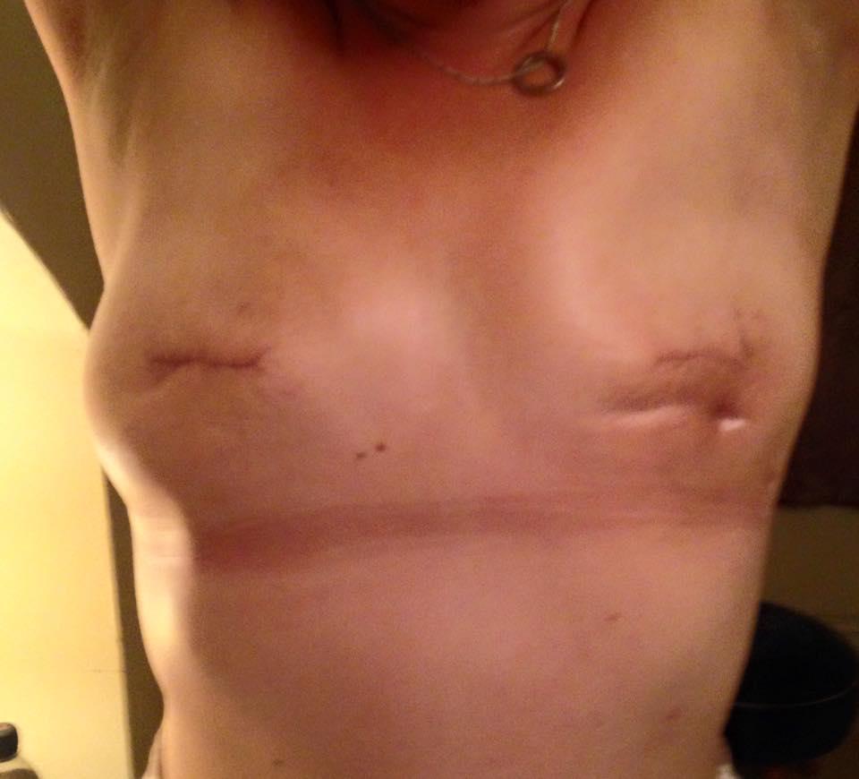 "Amanda Stewart, FOTO mastectomia su Fb: ""Cancro, hai perso""2"