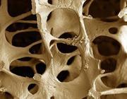 Menopausa, ossa protette con soia