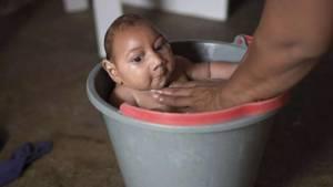 Microcefalia, neonati con testa piccola: epidemia in Brasile