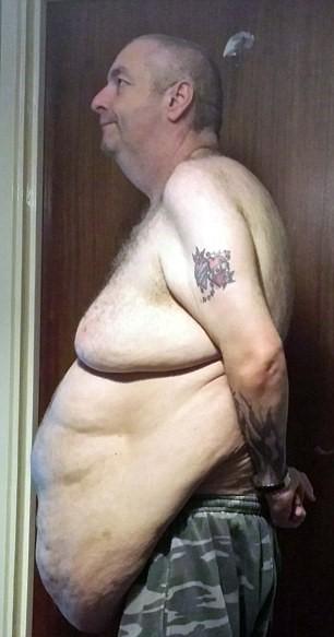Perde un terzo del peso, ora ha 12 kg di pelle in eccesso 3