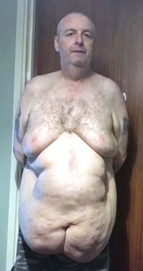 Perde un terzo del peso, ora ha 12 kg di pelle in eccesso 2