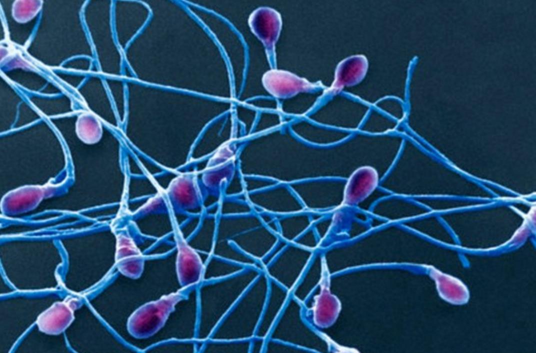 Fertilità maschile, arriva lo sperma creato da cellule pelle