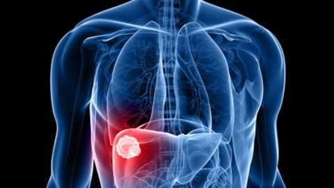 Cancro al fegato: i sintomi e le cure