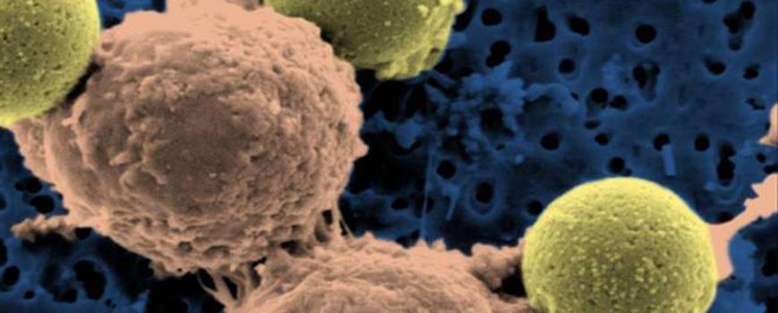 Lesioni midollo spinale riparate con le staminali: scoperta Usa