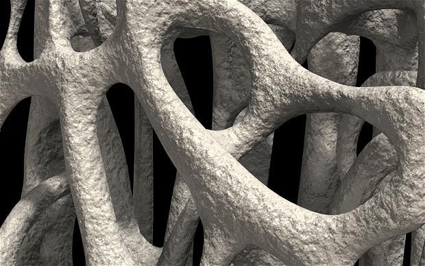 Cancro al seno, rischio osteoporosi con la terapia ormonale