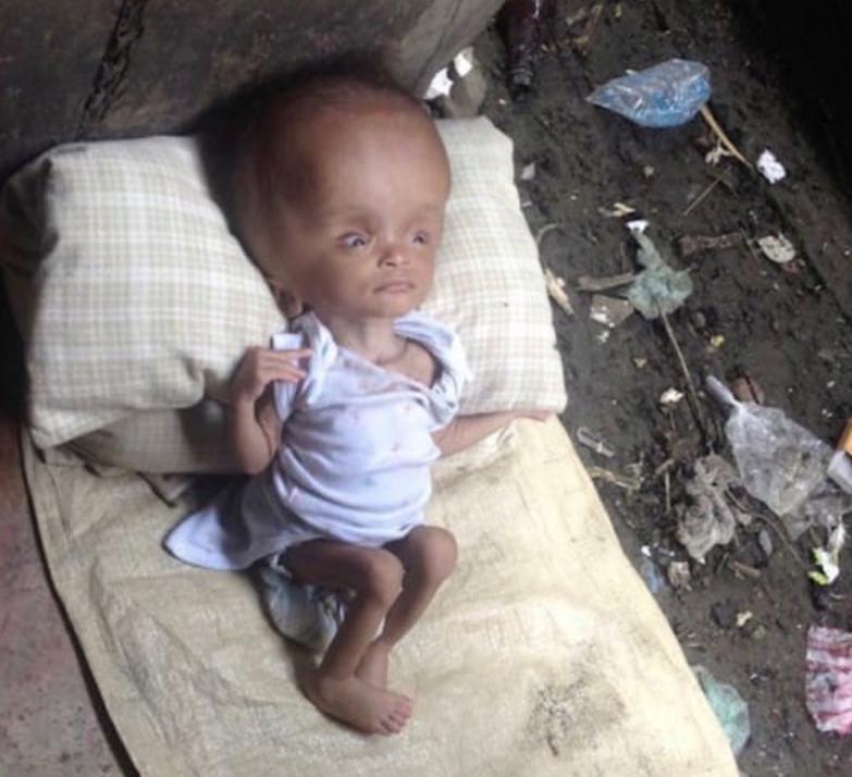 Haiti, neonata con malformazione adottata: dopo 2 anni... VIDEO