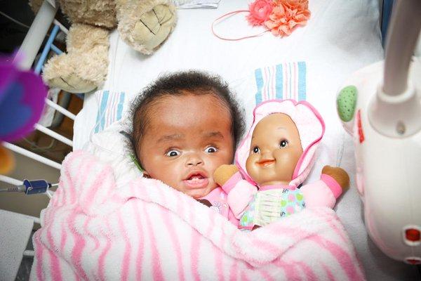Haiti, neonata con malformazione adottata7