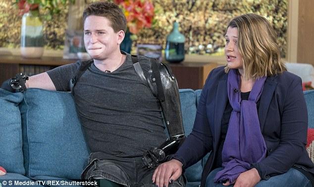 """Volto sfigurato e arti amputati: """"Mio figlio non mi riconosce"""" 7"""