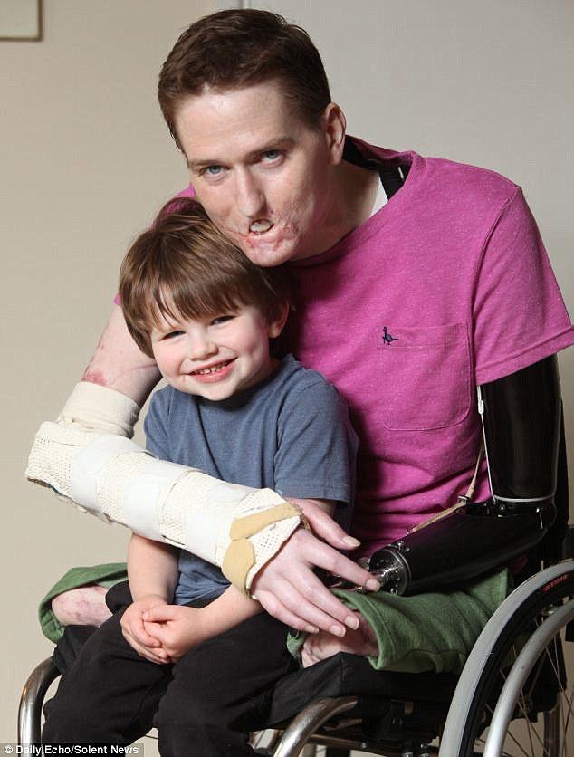 """Volto sfigurato e arti amputati: """"Mio figlio non mi riconosce"""""""