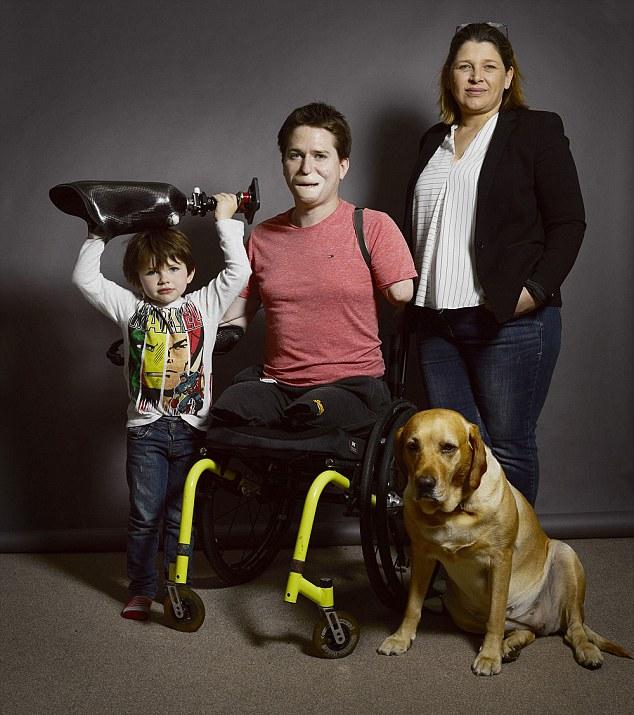 """Volto sfigurato e arti amputati: """"Mio figlio non mi riconosce"""" 2"""