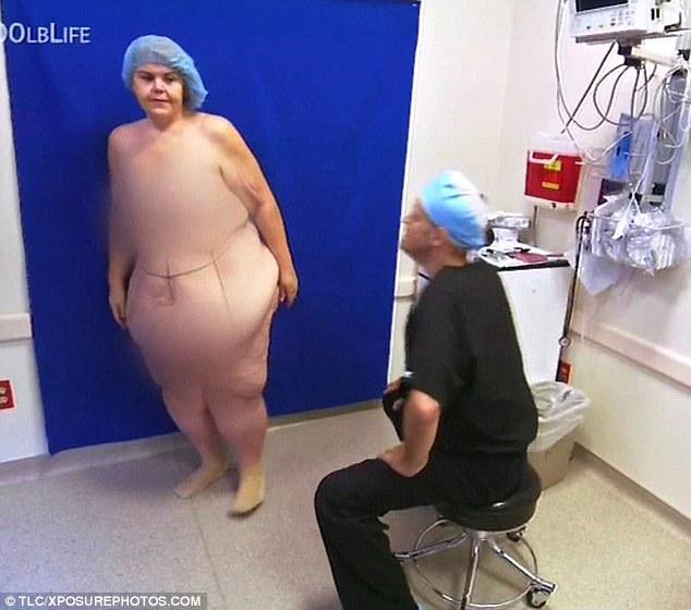 le rimuovono 23 chili di pelle8