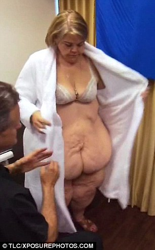 le rimuovono 23 chili di pelle4