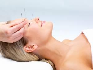 Menopausa, agopuntura riduce vampate di calore e sudorazioni