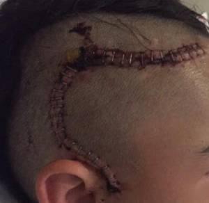"""Bimbo cade da bici e rischia vita. Appello madre: """"Usate casco"""""""