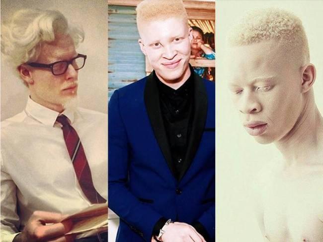 Ross, Thompson, Xaba: la rivincita dei modelli albini
