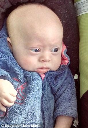Bimbo con sindrome Down genitori vogliono abortire12