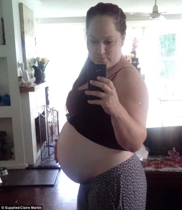 Bimbo con sindrome Down genitori vogliono abortire2