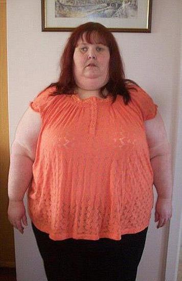 """Perde 114 kg ora ha pelle in eccesso: """"Mi sento un mostro5"""