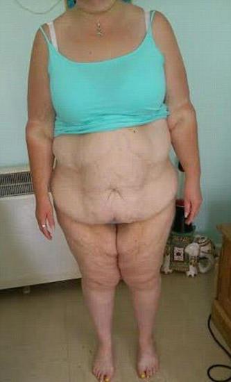 """Perde 114 kg ora ha pelle in eccesso: """"Mi sento un mostro11"""