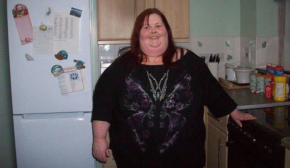 """Perde 114 kg ora ha pelle in eccesso: """"Mi sento un mostro6"""