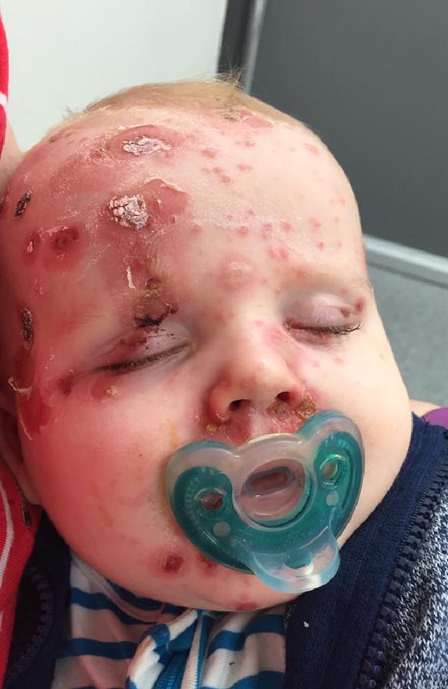 """""""Vaccinate bimbi contro varicella. Mio figlio Elijah ora è così4"""