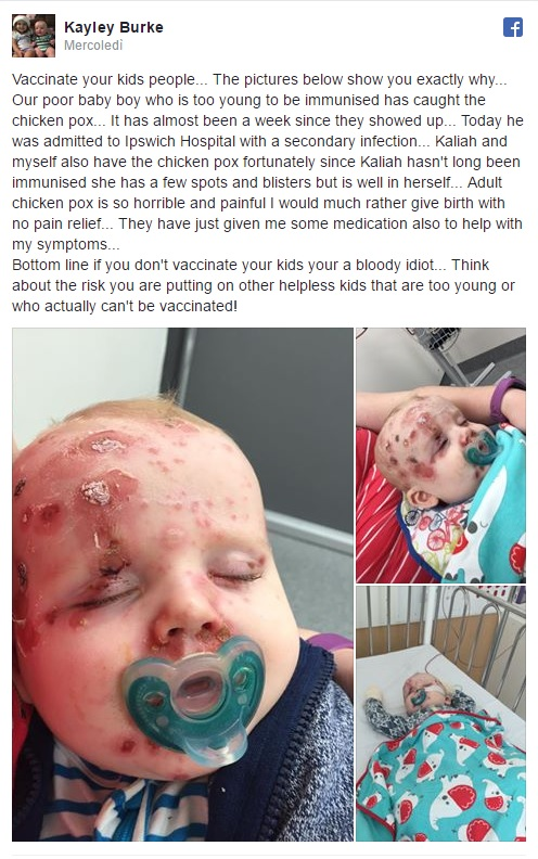 """""""Vaccinate bimbi contro varicella. Mio figlio Elijah ora è così2"""
