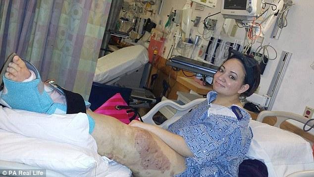 Arianna ha la gamba 3 volte più grande del normale5