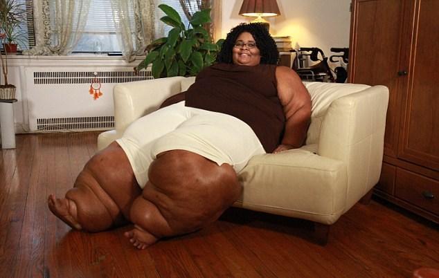 Lipedemia, Katia ha le gambe larghe 120 centimetri 2