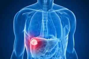 Allarme epatite: uccide più di Aids, tubercolosi e malaria