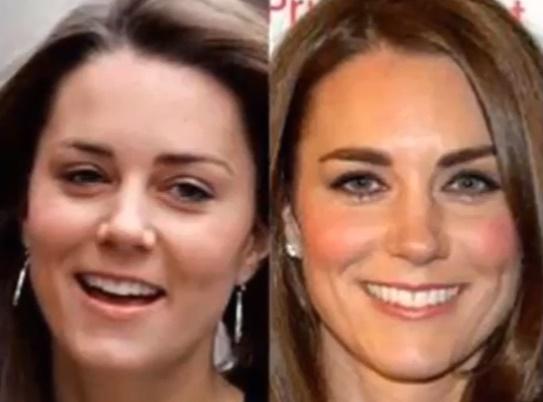 Kate Middleton rifatta? FOTO prima e dopo