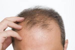 Alopecia, farmaco per artrite reumatoide fa ricrescere capelli