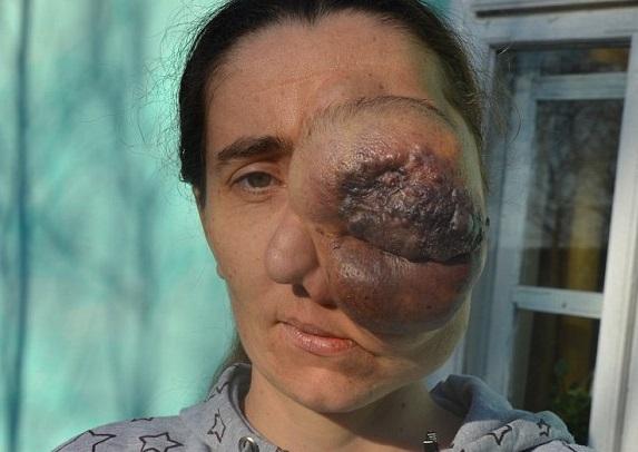 Risultati immagini per immagine occhi operati