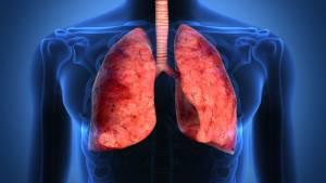 Tumore ai polmoni, nuove speranze dalla immunoterapia