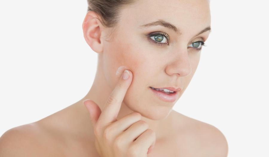 Rossori sul viso, come evitarli: acqua micellare e crema giusta