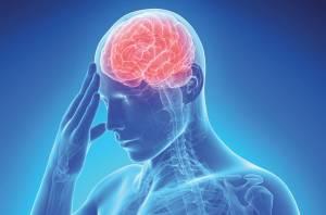 Ictus, i 4 sintomi da riconoscere per salvarsi la vita