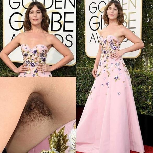 Lola Kirke, attrice con le ascelle pelose ai Golden Globe 2017