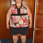 Pesava 195 chili ne perde 80 ora deve togliersi altri 13 kg di pelle 10
