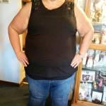 Pesava 195 chili ne perde 80 ora deve togliersi altri 13 kg di pelle