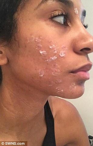 reazione allergica alla ceretta