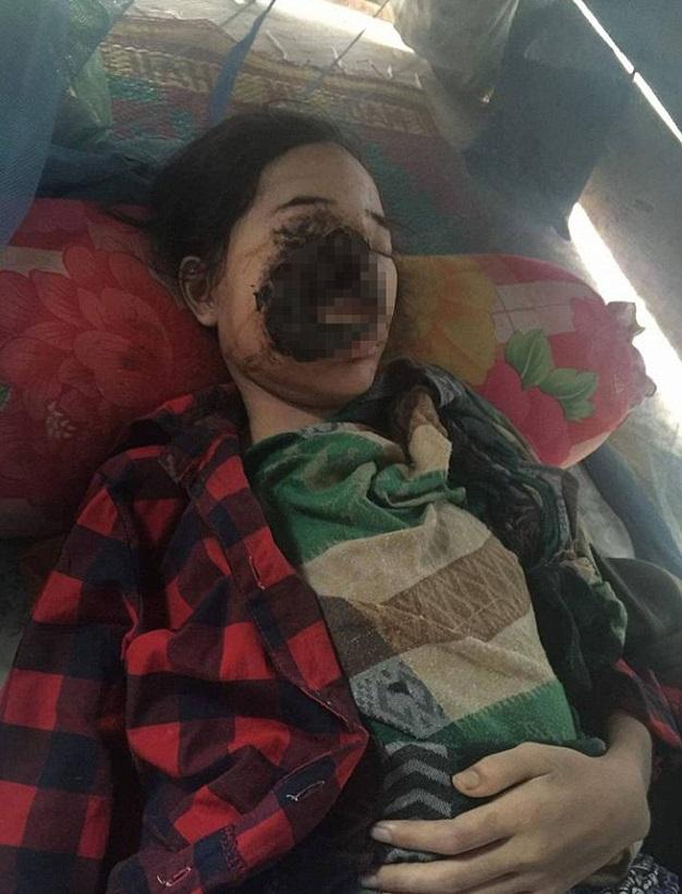 Batterio preso dal dentista le riduce il volto così FOTO2