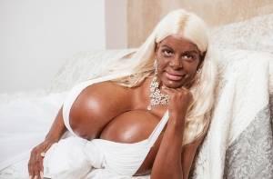 Ex hostess si rovina così: seno gigante e la pelle4