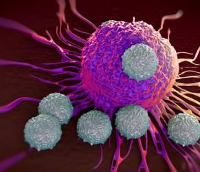 Tumore al polmone, immunoterapia allunga la vita