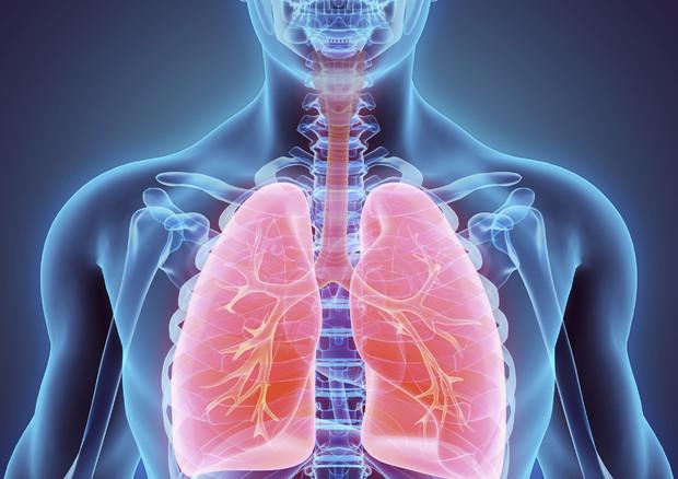 Tumore al polmone, scoperto come fermarne la crescita