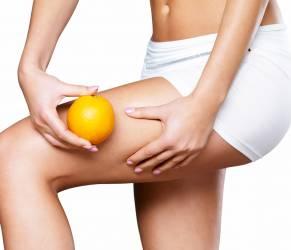 Cellulite, 5 consigli per eliminarla
